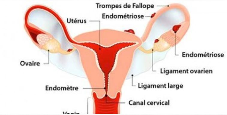 Une conférence consacrée à l'endométriose