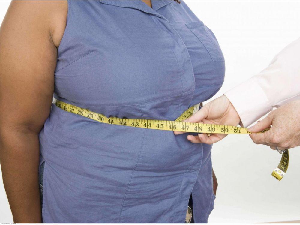 Les femmes plus touchées par l'obésité en Guadeloupe que dans l'hexagone