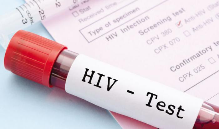 Des taux d'infection au VIH plus élevés aux Antilles-Guyane