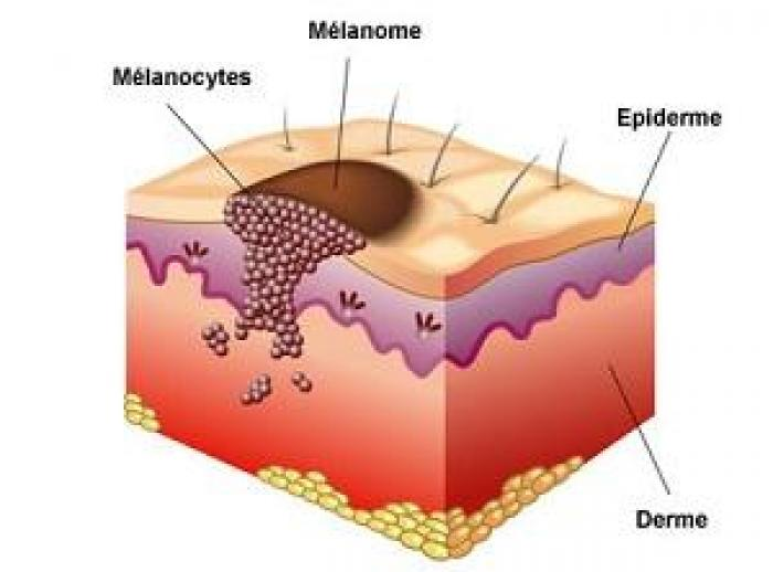 Le mélanome cutané, un cancer encore peu connu