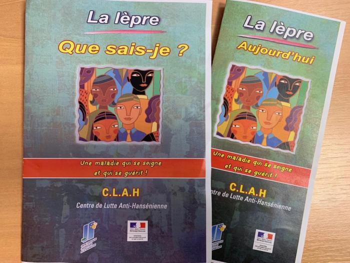 Lèpre en Guadeloupe: entre 1 et 4 cas traités chaque année